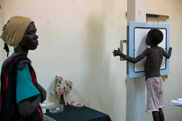 A child undergoes an x-ray at the Indian Field Hospital, in Malakal
